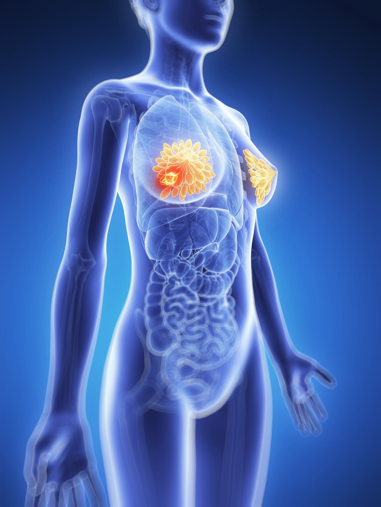 3d rendered illustration - breast cancer